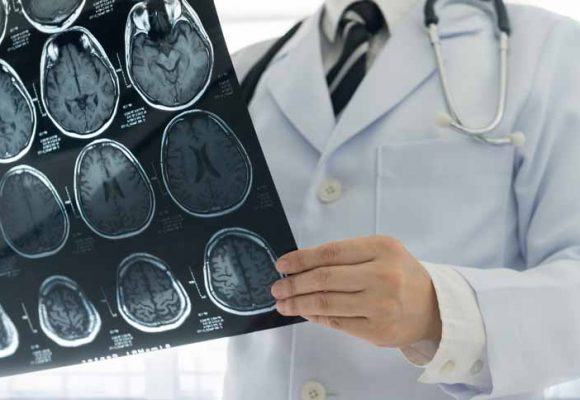 #Shingles and Stroke in the young?